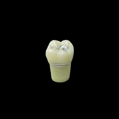 3D printed Educational Caries Tooth 19